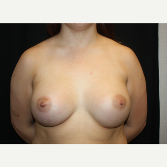 25-34 year old woman treated with Breast Augmentation after 2930007