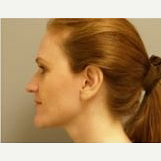 25-34 year old woman treated with Rhinoplasty after 3097569