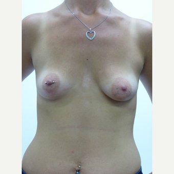 25-34 year old woman treated with Breast Implants before 3833199