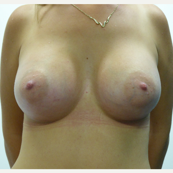25-34 year old woman treated with Breast Implants after 3833199