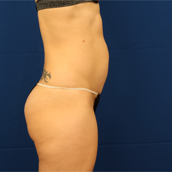25-34 year old woman treated with Tummy Tuck before 3685773