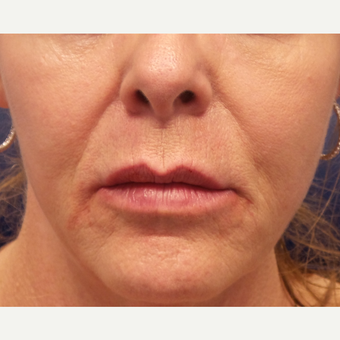 55-64 year old woman treated with Lip Augmentation after 3675163