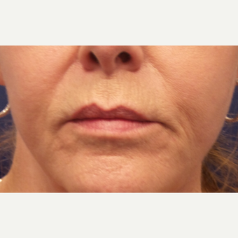 55-64 year old woman treated with Lip Augmentation before 3675163