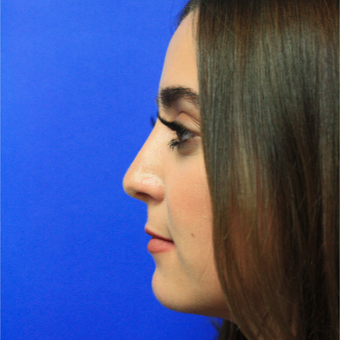 18-24 year old woman treated with Rhinoplasty after 3399636