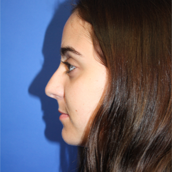 18-24 year old woman treated with Rhinoplasty before 3399636