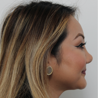 25-34 year old woman treated with Revision Rhinoplasty before 3583593