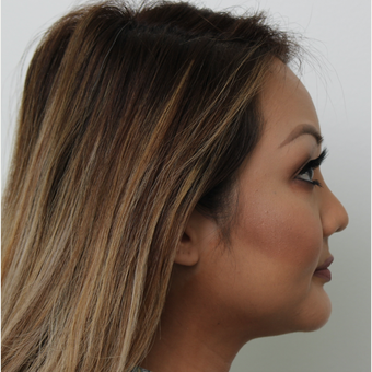 25-34 year old woman treated with Revision Rhinoplasty after 3583593