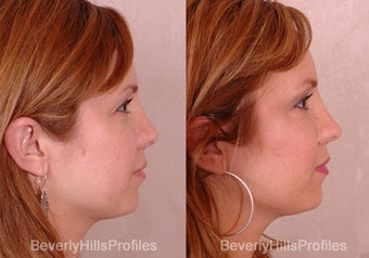 Revision Rhinoplasty before 681866