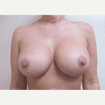 32 year old woman treated with Breast Augmentation after 1981545