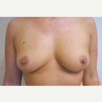 32 year old woman treated with Breast Augmentation before 1981545
