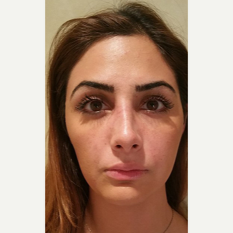 25-34 year old woman treated with Rhinoplasty after 3687084