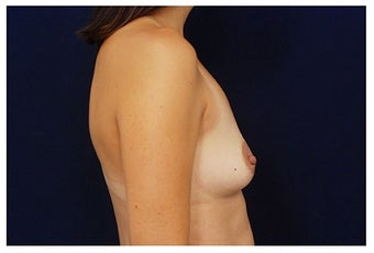 Breast Augmentation before 1335746