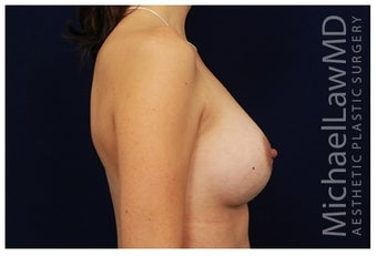 Breast Augmentation after 1335746