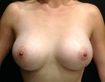26 year old patient wanted breast augmentation after 1506479