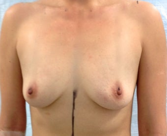 26 year old patient wanted breast augmentation before 1506479