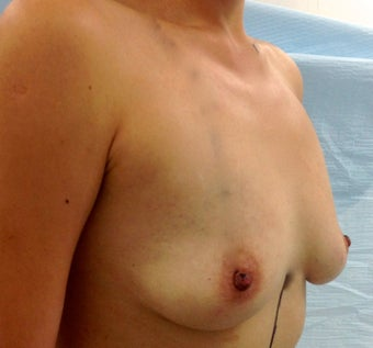 26 year old patient wanted breast augmentation 1506479