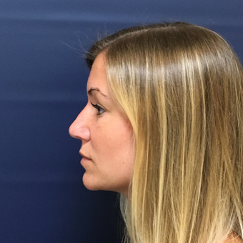 25-34 year old woman treated with Rhinoplasty after 3378061