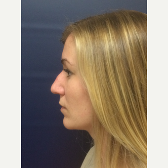 25-34 year old woman treated with Rhinoplasty before 3378061