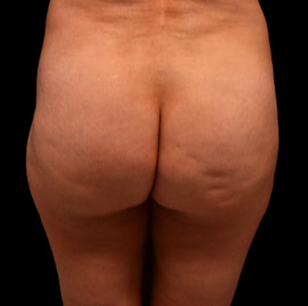 35-44 year old woman treated with Cellfina before 3220364