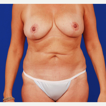 45-54 year old woman treated with Mommy Makeover after 3731088