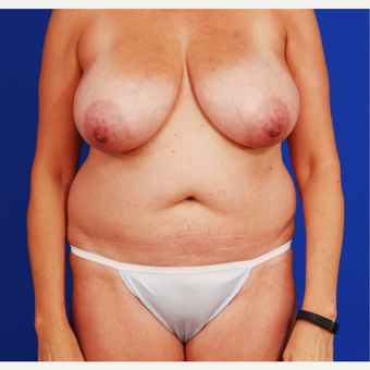 45-54 year old woman treated with Mommy Makeover before 3731088