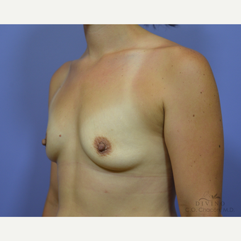 25-34 year old woman treated with Breast Augmentation before 3418996