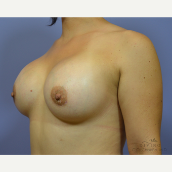 25-34 year old woman treated with Breast Augmentation after 3418996