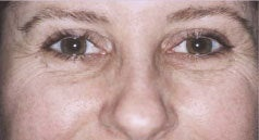Laser Skin Resurfacing before 1405731