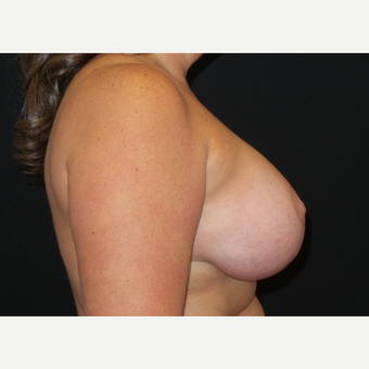 35-44 year old woman treated with Breast Lift with Implants after 3305195