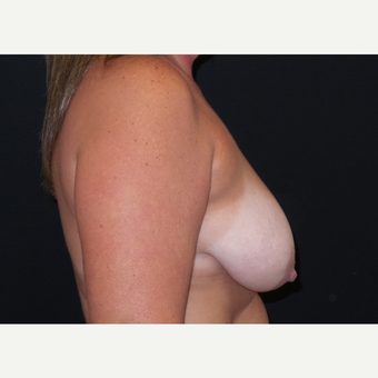 35-44 year old woman treated with Breast Lift with Implants before 3305195