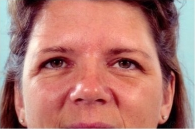 Eyelid Surgery after 3446337