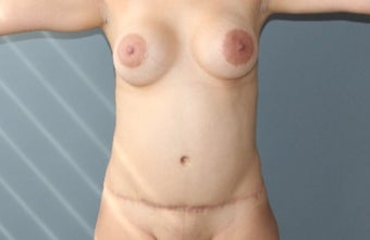 35-44 year old woman treated with Mommy Makeover before 3266454