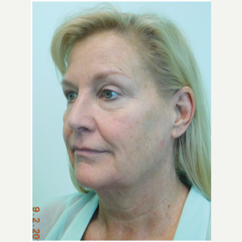 55-64 year old woman treated with Facelift, Fat Grafting, and Lower Eye Laser before 3670701