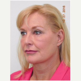 55-64 year old woman treated with Facelift, Fat Grafting, and Lower Eye Laser after 3670701
