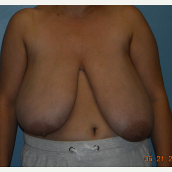 45-54 year old woman treated with Breast Reduction before 3214515