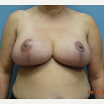 45-54 year old woman treated with Breast Reduction after 3214515