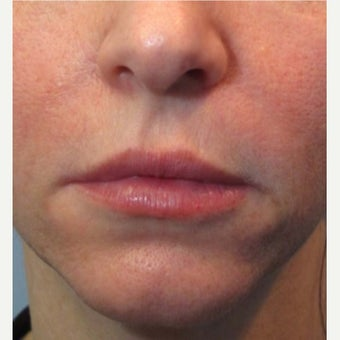 25-34 year old woman treated with Juvederm