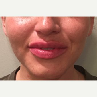 25 year old woman treated with Restylane Silk to the lips after 3036941