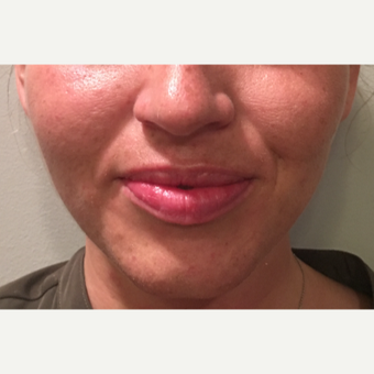 25 year old woman treated with Restylane Silk to the lips before 3036941