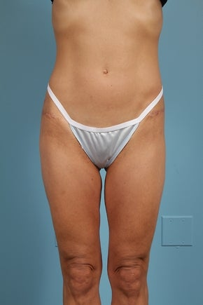 Thigh Lift Patient after 779062