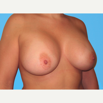 Breast Augmentation after 3732463
