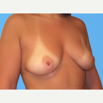 Breast Augmentation before 3732463