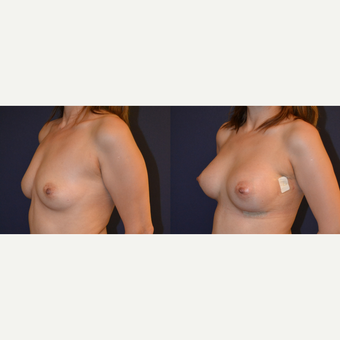 35-44 year old woman treated with Breast Augmentation before 3238789