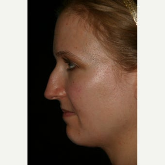 25-34 year old woman treated with Rhinoplasty before 2592629