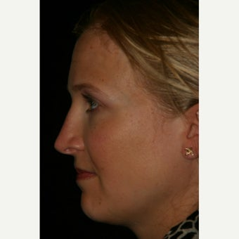 25-34 year old woman treated with Rhinoplasty after 2592629