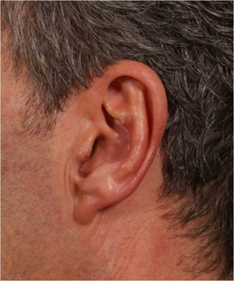 58 year old male with left prominent ear causing emberrassment and distress