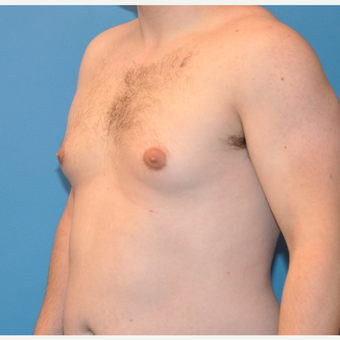 25-34 year old man treated with Male Breast Reduction before 3705410
