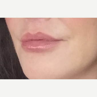 45-54 year old woman treated with Lip Lift after 3384350