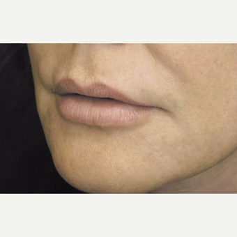 45-54 year old woman treated with Lip Lift before 3384350