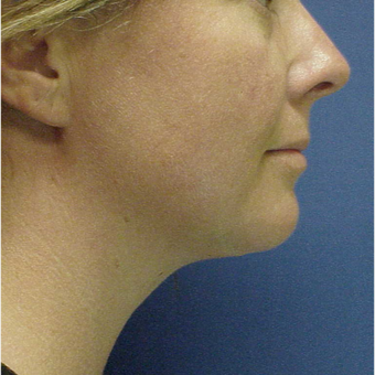 35-44 year old woman treated with Kybella after 3499842